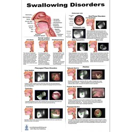Swallowing Disorders Large Poster
