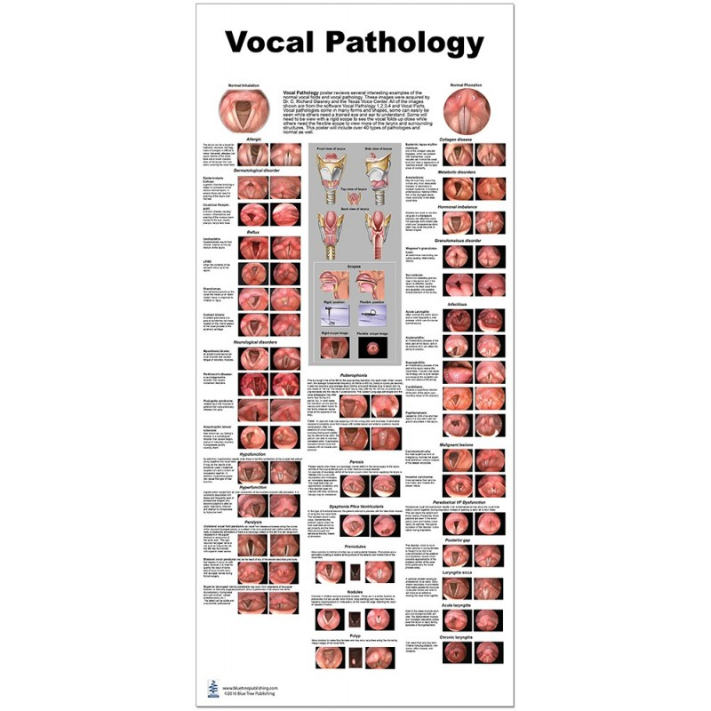 Vocal Pathology Large Poster