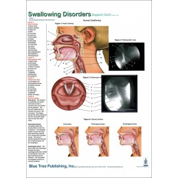 Swallowing Disorders Anatomical Chart card 01 front