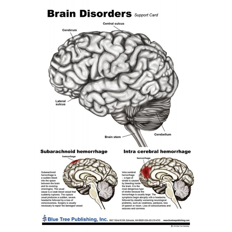 Brain Disorders Anatomical Chart front