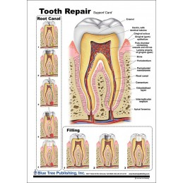 Tooth Repair Anatomical Chart front