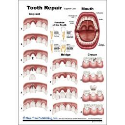 Tooth Repair Anatomical Chart back
