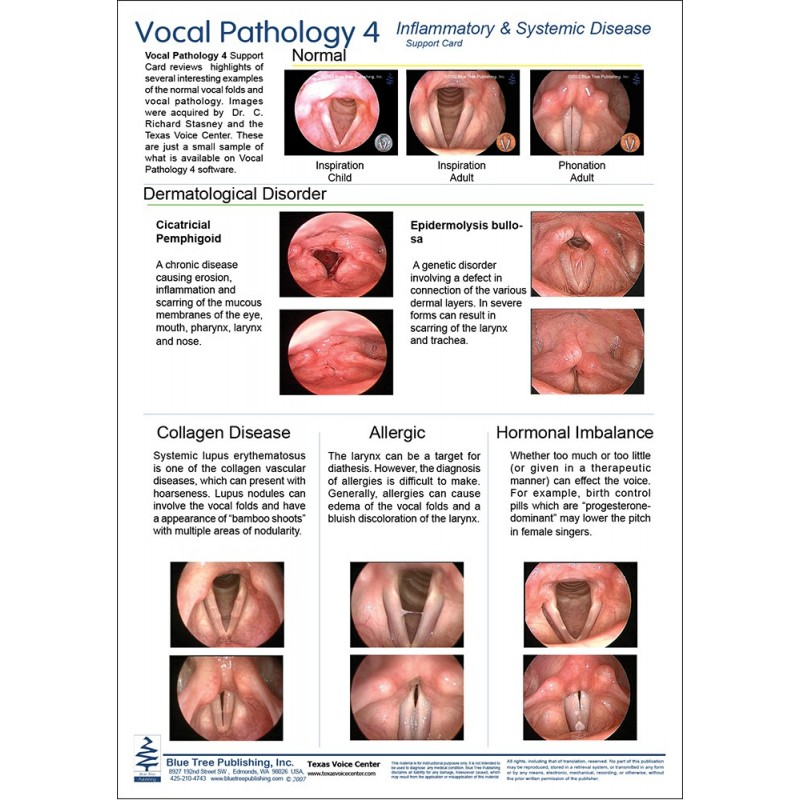 Vocal Pathology IV Anatomical Chart card 1 front