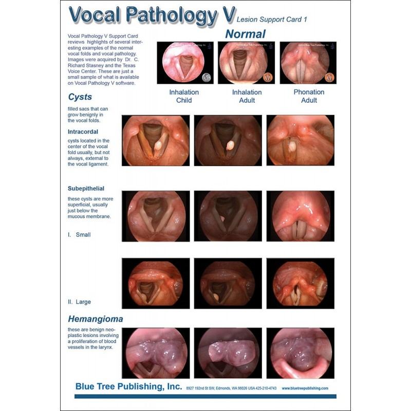 Vocal Pathology V Anatomical Chart car 1 front