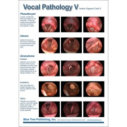 Vocal Pathology V Anatomical Chart card 2 front