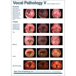 Vocal Pathology V Anatomical Chart card 2 back