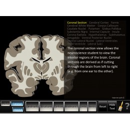 Cerebrum ID Mobile App coronal section view