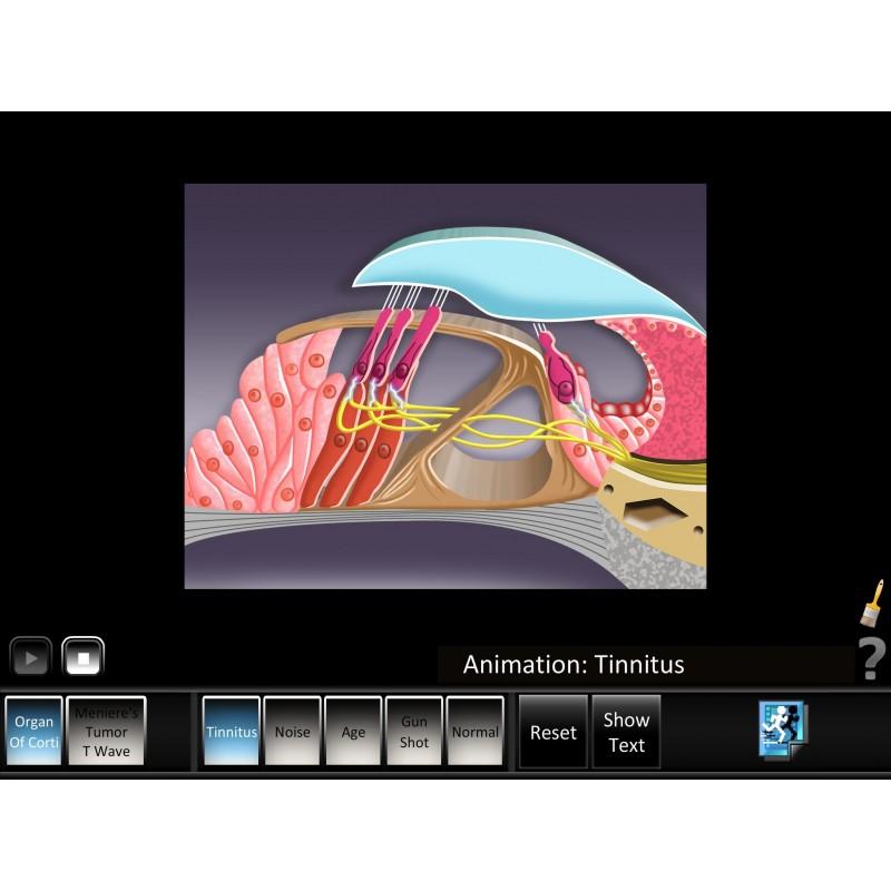 Ear Disorder - Inner Ear Mobile App tinnitus animation