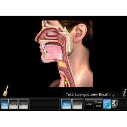 Laryngectomy Mobile App total laryngectomy