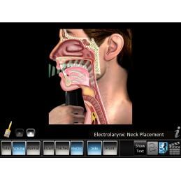Laryngectomy Mobile App electrolarynx speech