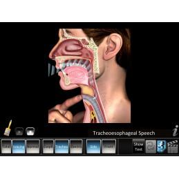 Laryngectomy Mobile App tracheoesophageal speech
