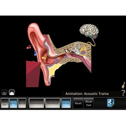 Ear Disorders - Outer Middle Ear Mobile App acoustic trauma animation