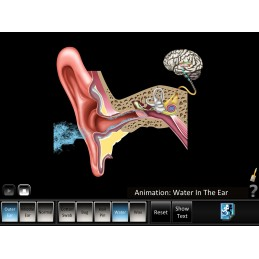 Ear Disorders - Outer Middle Ear Mobile App swimmers ear animation