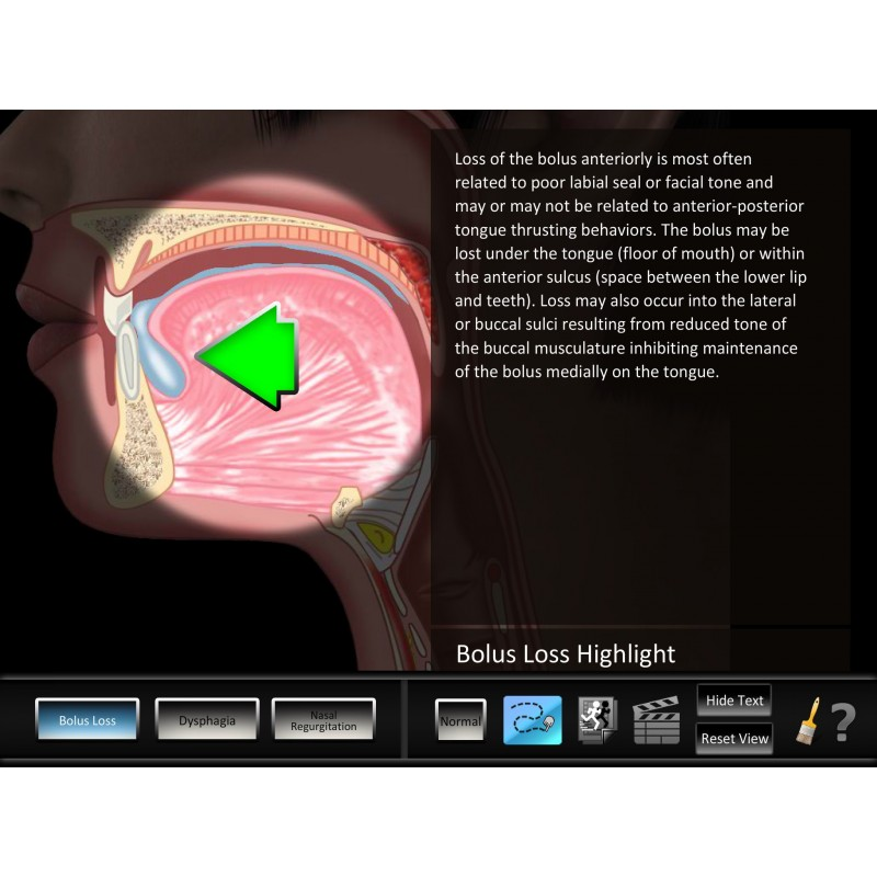 Swallowing Oral Disorders Mobile App zoomed in key highlight