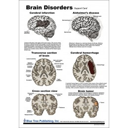 Brain and Brain Disorders Anatomical Chart disorders chart back