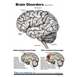 Brain and Brain Disorders Anatomical Chart disorders chart front