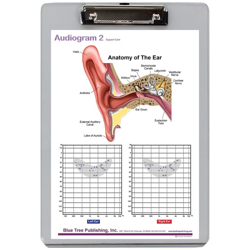 Audiogram Dry Erase Clipboard front