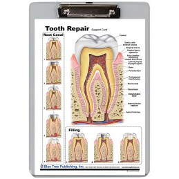 Tooth Repair Dry Erase Clipboard front