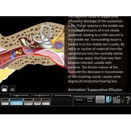 Hearing 9 App Computer Software Set - Otitis Media