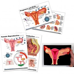 Uterus and Female Anatomical Charts and Uterus Model