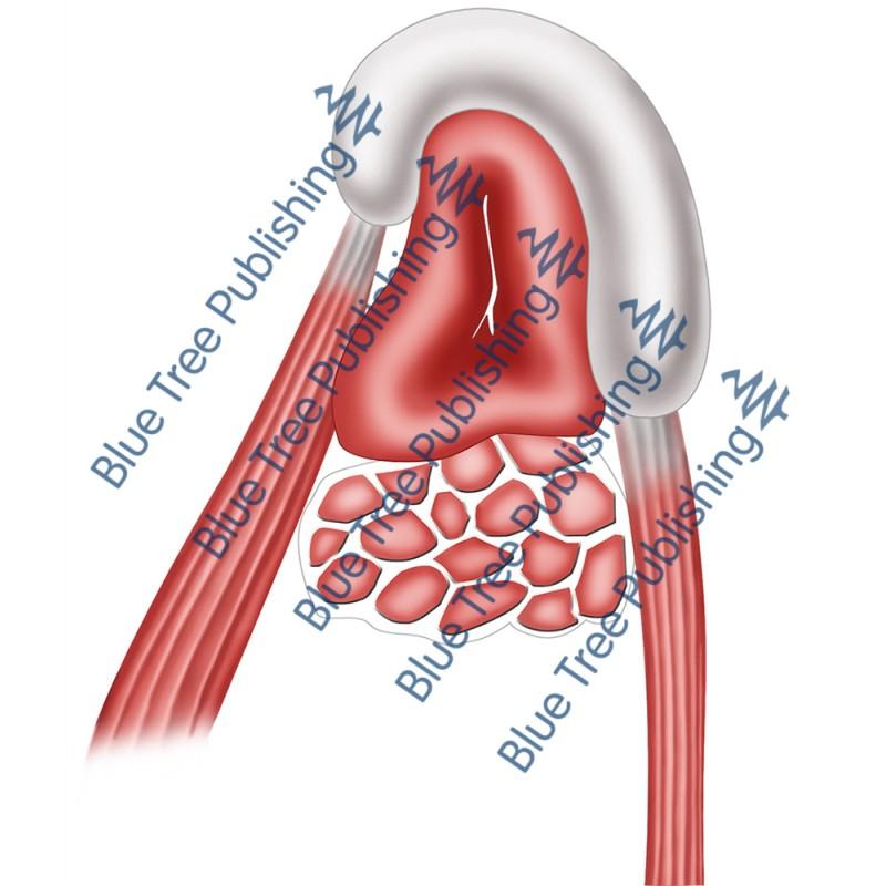 Hearing Eustachian Muscle - Download Image
