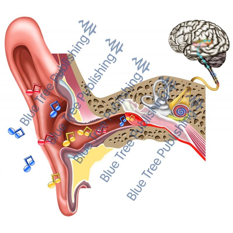 Hearing Serous Effusion - Download Image