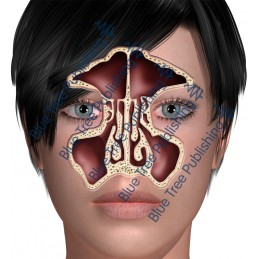 Sinus Front - Download Images