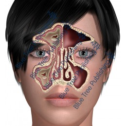 Sinus Front Abnormal - Download Images