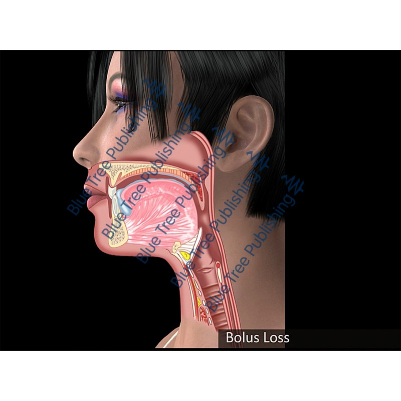 Swallowing Bolus Loss Animation - Download Video