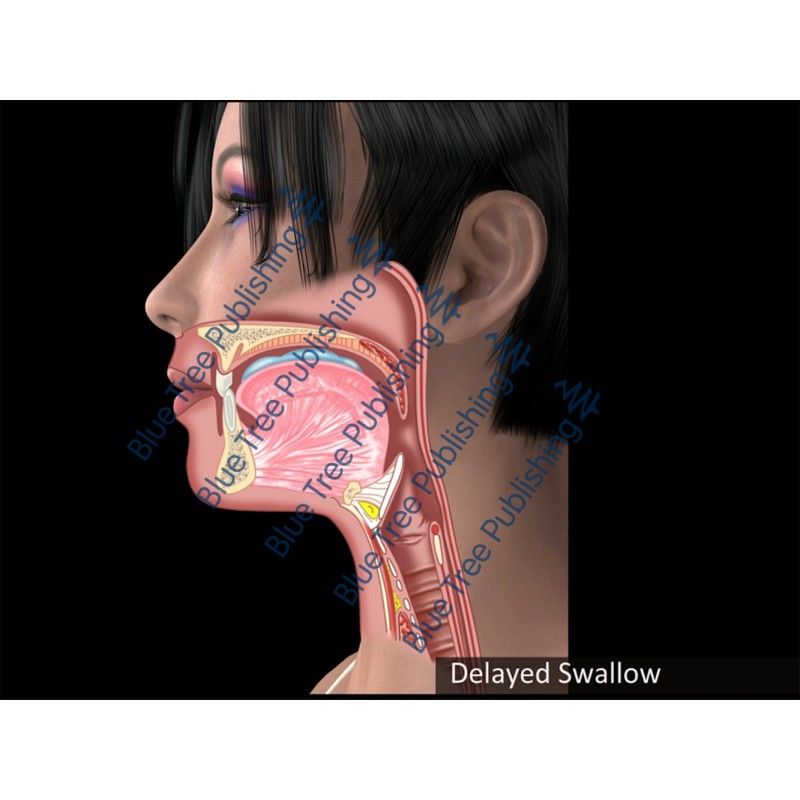 Swallowing Delayed Swallow Animation - Download Video