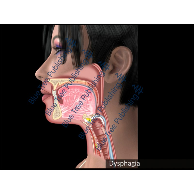 Swallowing Dysphagia Animation - Download Video