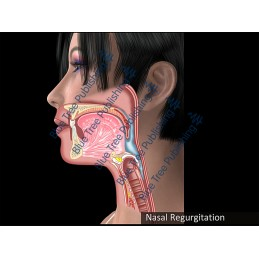 Swallowing Nasal Regurgitation Animation - Download Video