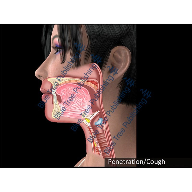Swallowing Penetration Cough Animation - Download Video