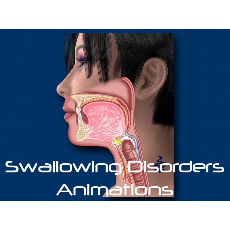 Swallowing Disorder 10 Animations - Download Video Set