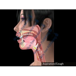 Swallowing Aspiration Cough Animation - Download Video