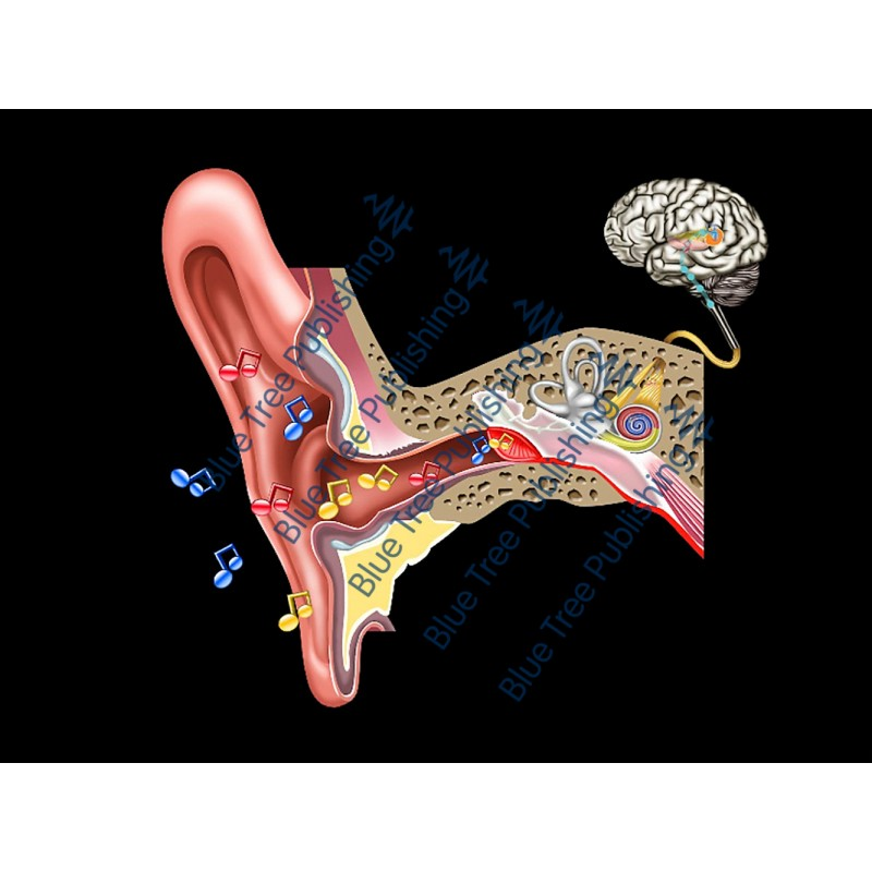 Hearing Serous Effusion Animation - Download Video