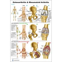 Osteoarthritis and Rheumatoid Arthritis Large Poster