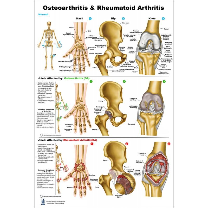 Osteoarthritis and Rheumatoid Arthritis Medium Poster