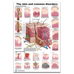 Skin and Skin Disorders Large Poster