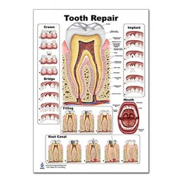 Tooth Repair Regular Poster
