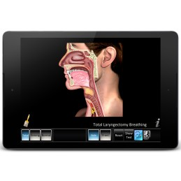 Laryngectomy Mobile App