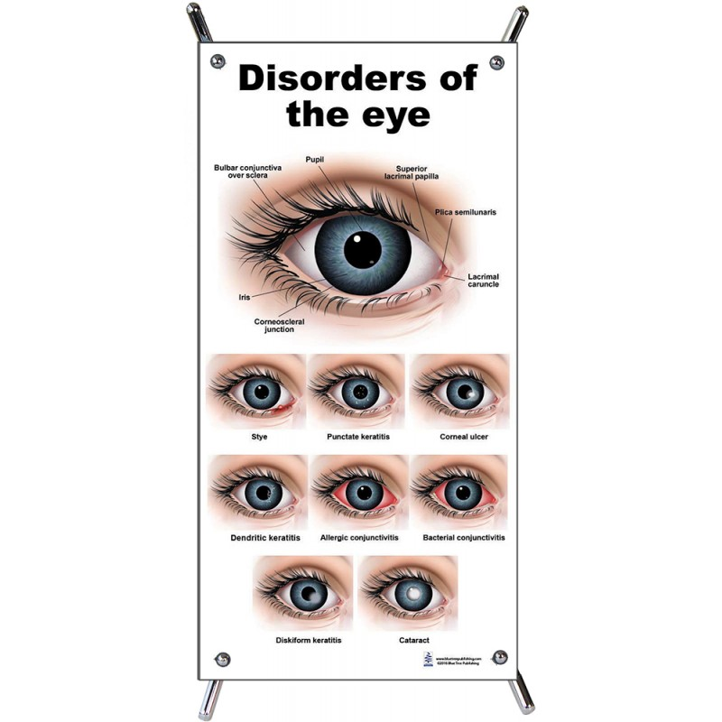 Eye Disorders Small Poster with stand