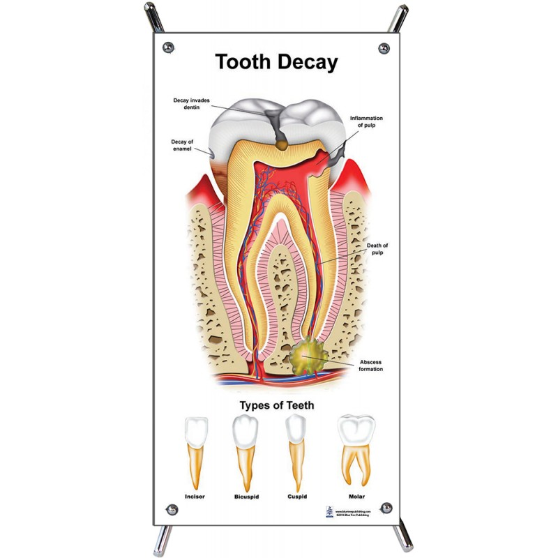 Tooth Decay Small Poster with stand