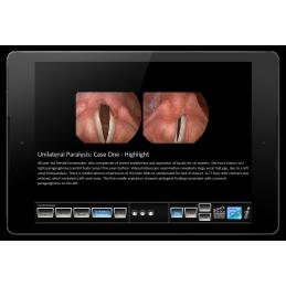 Vocal Pathology - Paresis/Paralysis Mobile App