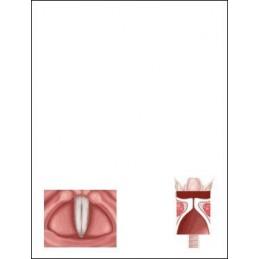 Vocal Fold Flip Note page 3