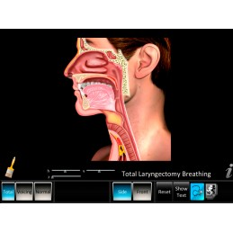 Laryngectomy Computer App Total Laryngectomy Breathing