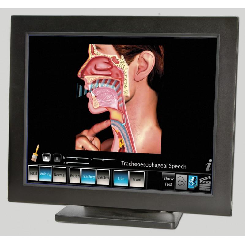 Laryngectomy Computer App