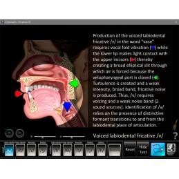 Speech Articulation Five Computer Software App Set - Fricatives