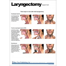 Laryngectomy Anatomical Chart - front