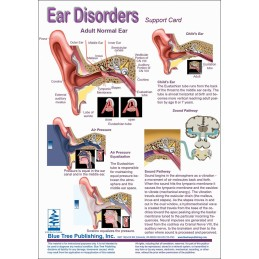 Hearing Computer Software and Chart Set - Ear Disorders Anatomical Chart card one front